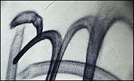 EM (db strenický)