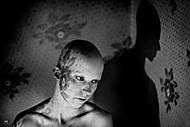 Alopecie (nejmil)